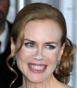 Nicole-Kidman-White-Powder-Make-Up-Malfunction-Photos